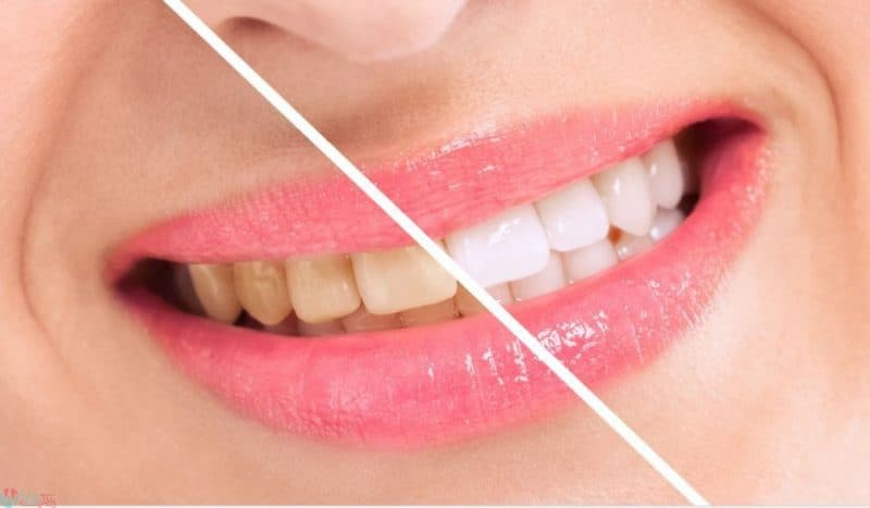 16 وصفة طبيعية لتبييض الاسنان