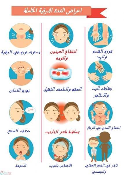 اعراض الغدة الدرقية الخاملة وطريقة علاجها 5