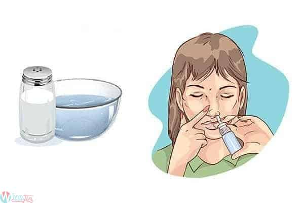 كيفية التعامل مع وعلاج نزيف الانف اثناء الحمل 5