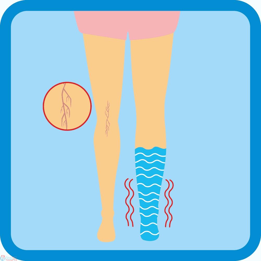 كيف تتخلصي من تورم القدمين في الحمل ؟ 6