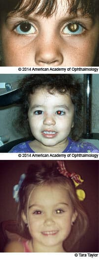 هل التصوير بالفلاش آمن لعيون الأطفال؟ 5