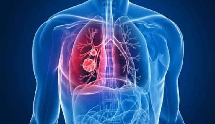 ما هو التهاب الرئتين؟ 8
